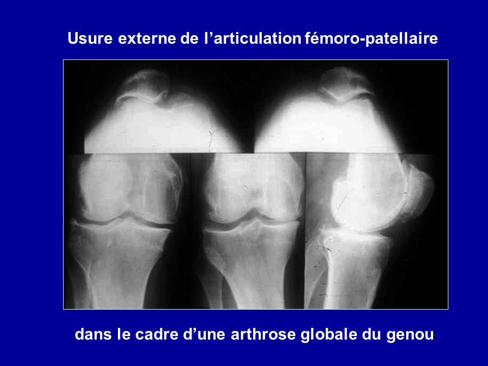 Usure externe de l'articulation fémoro-patellaire