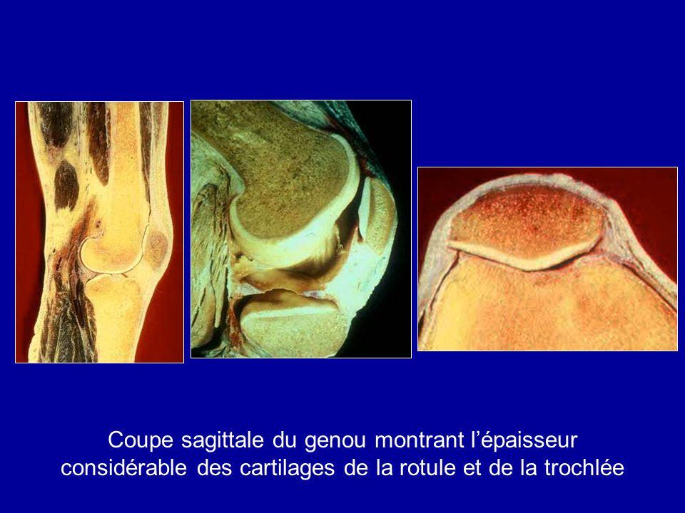 Coupe sagittale du genou montrant l'épaisseur considérable des cartilages de la rotule et de la trochlée