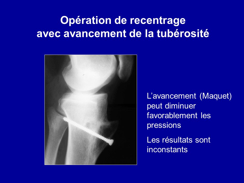 Opération de recentrage avec avancement de la tubérosité