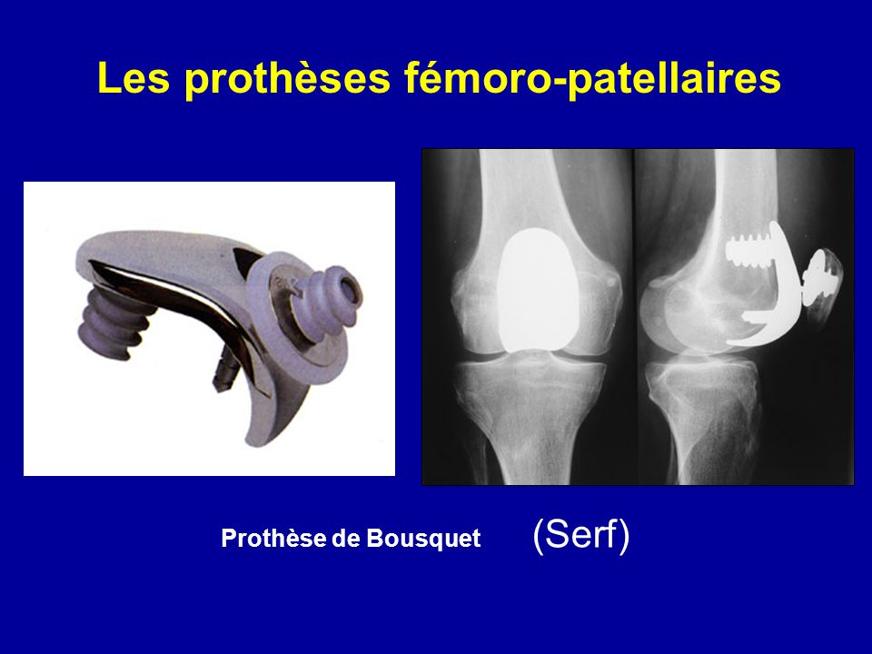 Les prothèses fémoro-patellaires