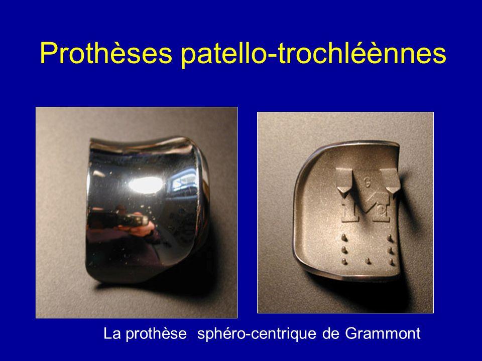 Prothèses patello-trochléènnes