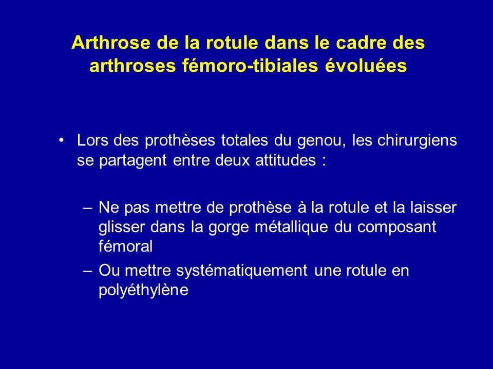 Arthrose de la rotule dans le cadre des arthroses fémoro-tibiales évoluées