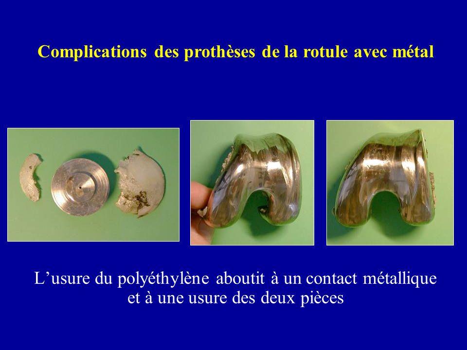 Complications des prothèses de la rotule avec métal