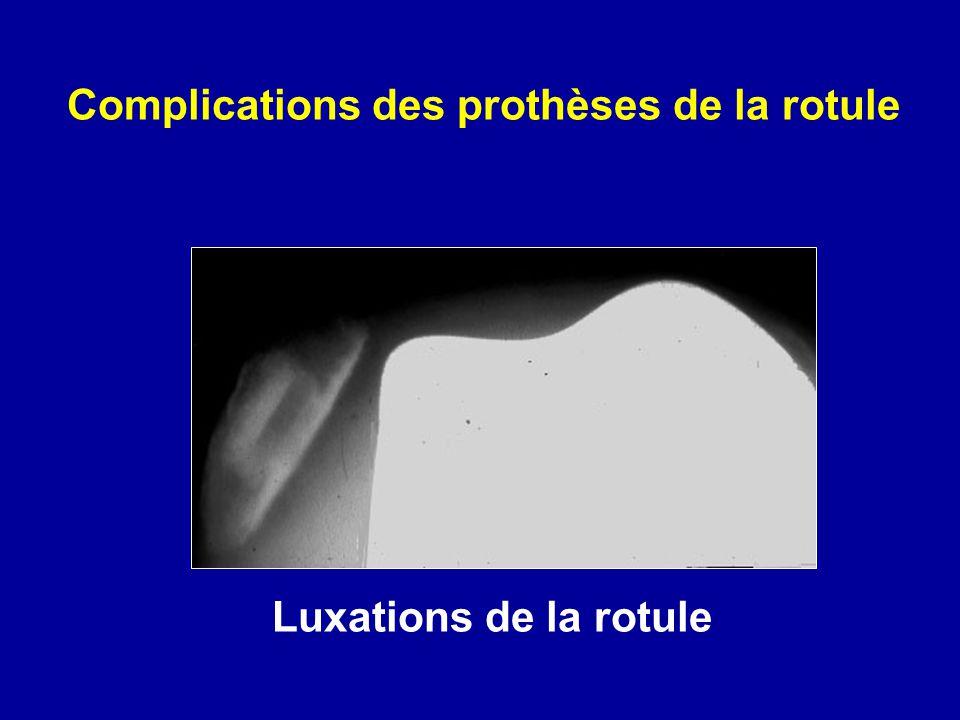 Complications des prothèses de la rotule