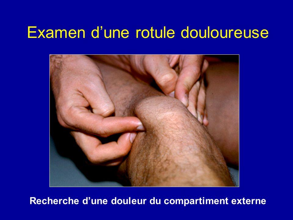 Examen d'une rotule douloureuse