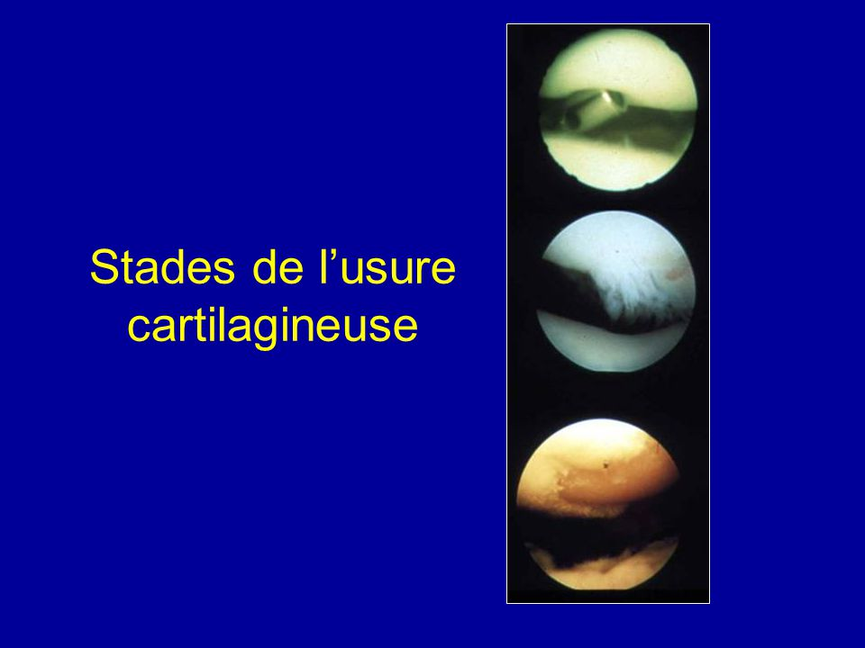 Stades de l'usure cartilagineuse