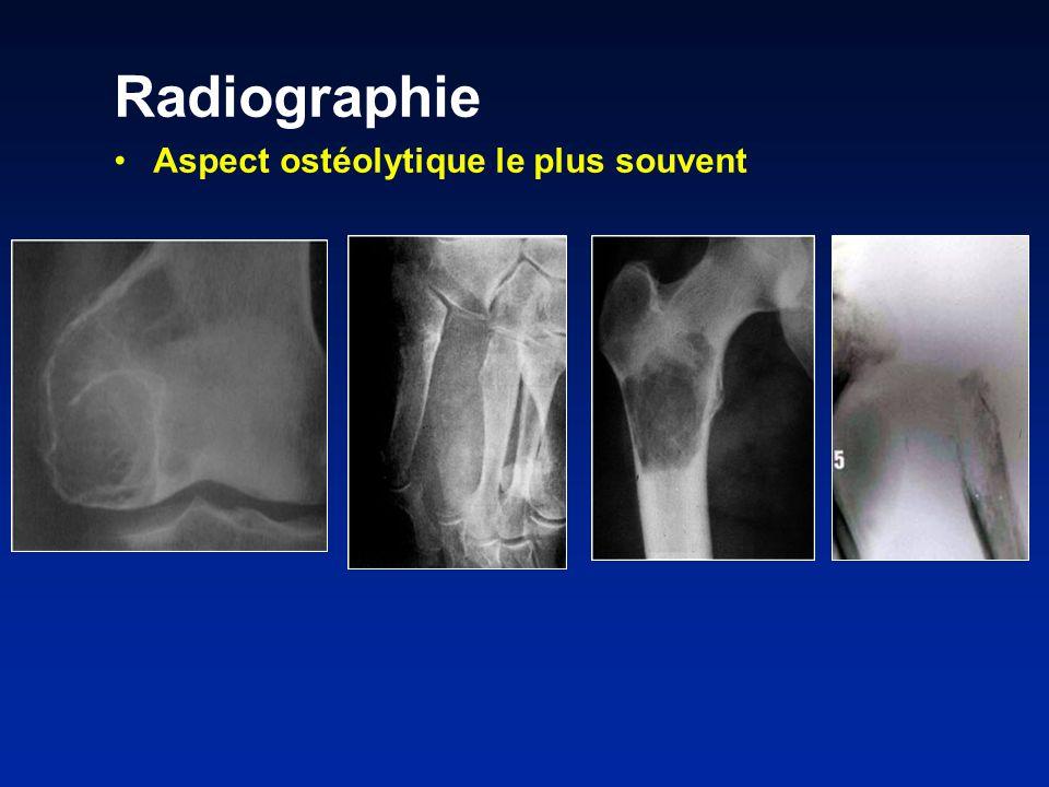 Radiographie Aspect ostéolytique le plus souvent