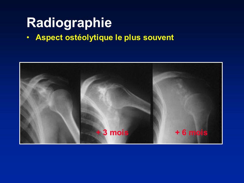 Radiographie Aspect ostéolytique le plus souvent + 3 mois + 6 mois