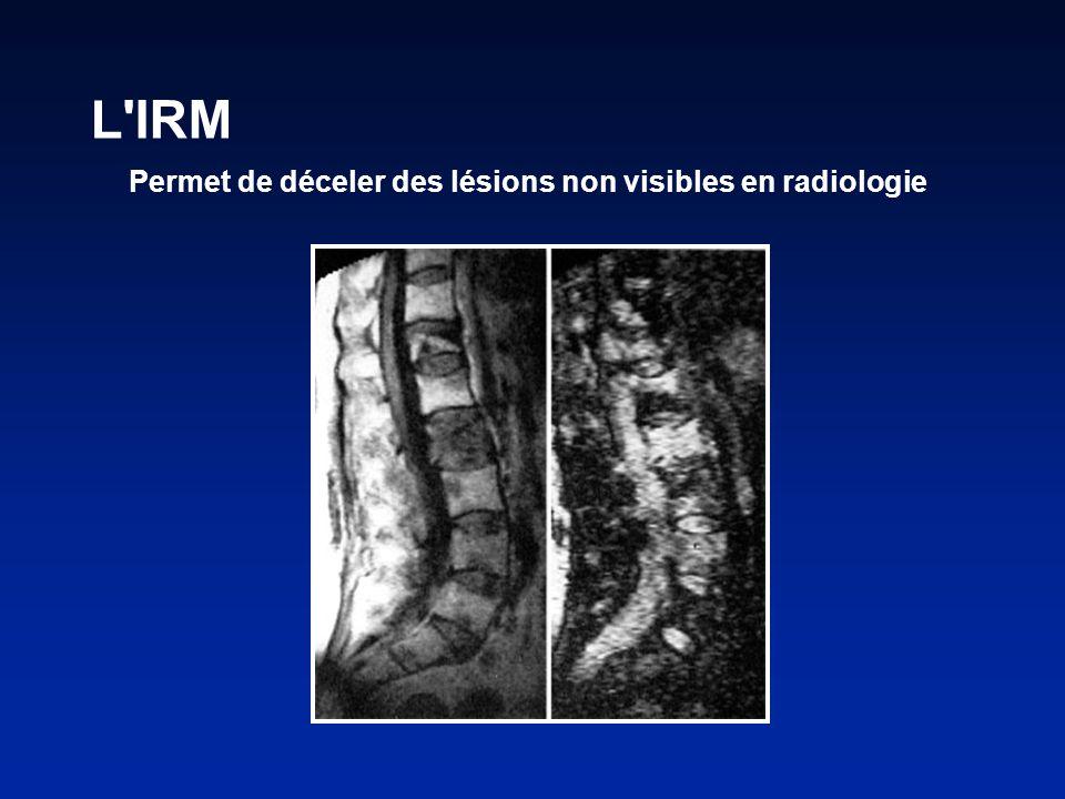 L IRM Permet de déceler des lésions non visibles en radiologie