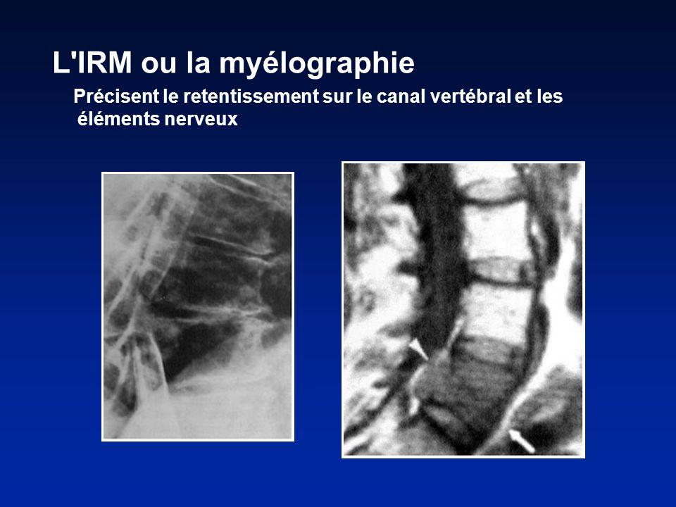 L IRM ou la myélographie