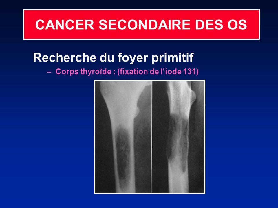 CANCER SECONDAIRE DES OS