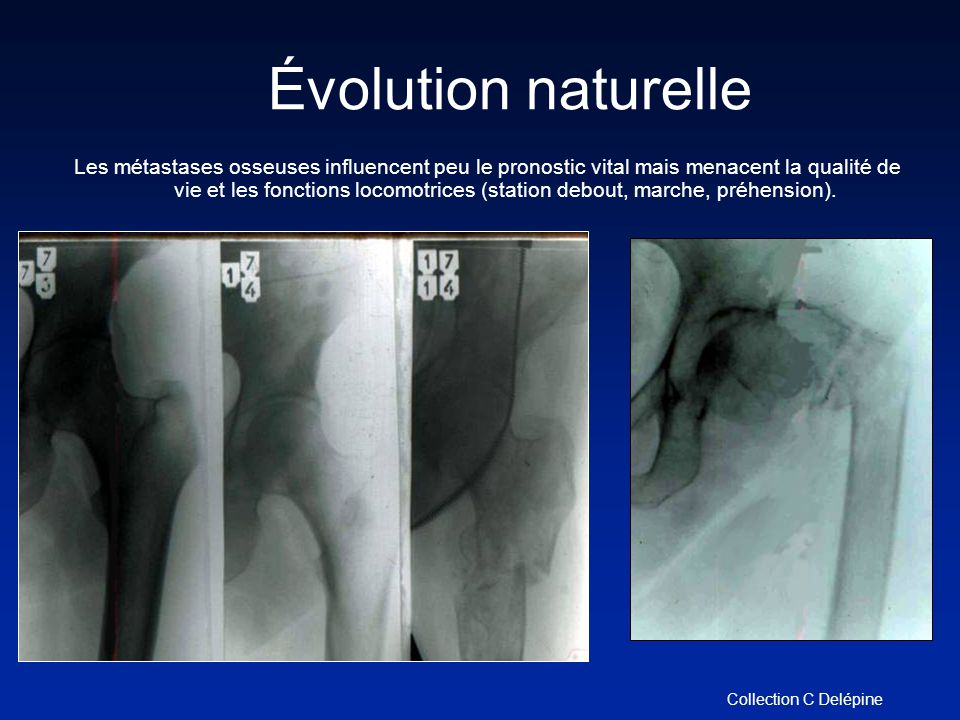 Évolution naturelle