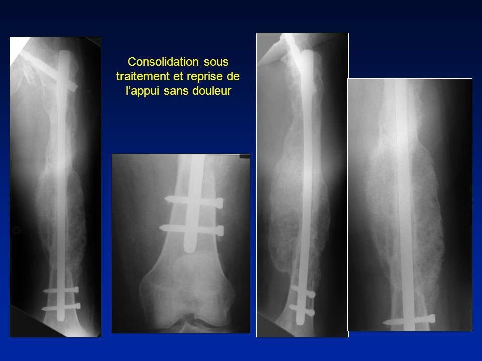Consolidation sous traitement et reprise de l'appui sans douleur