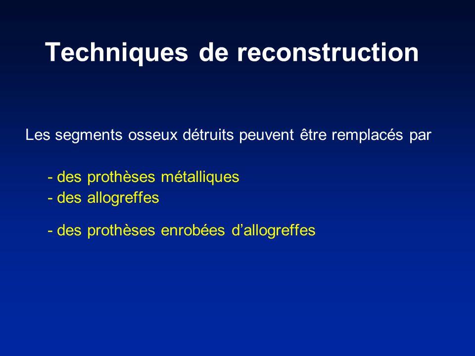 Techniques de reconstruction