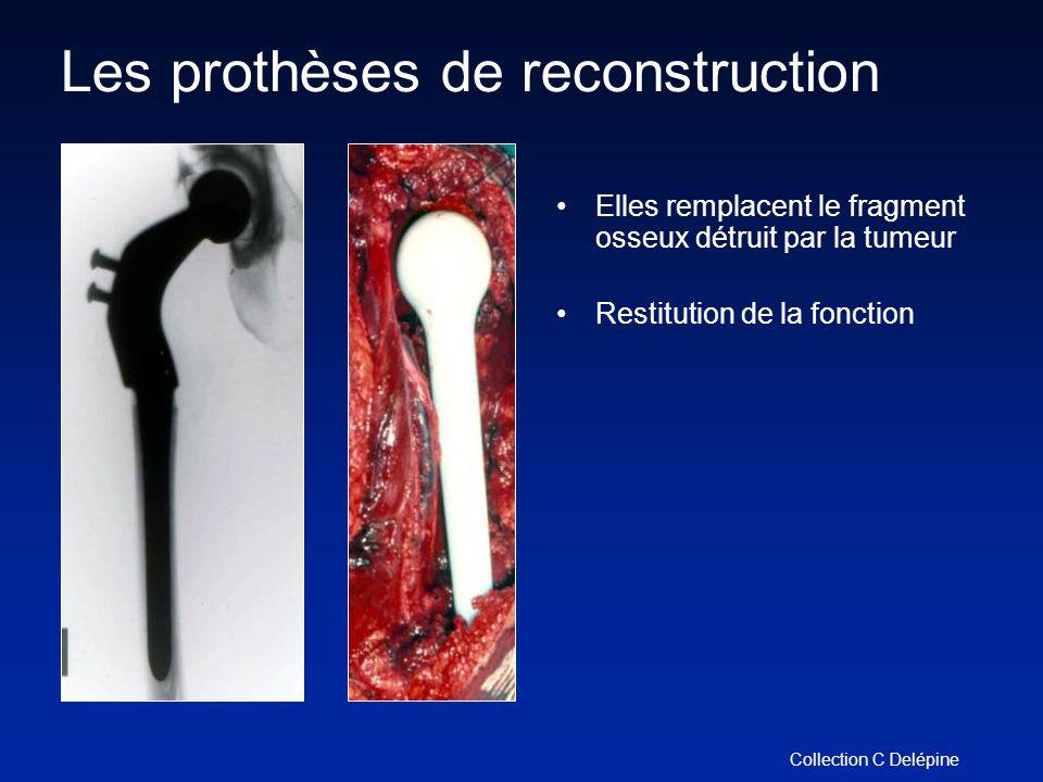 Les prothèses de reconstruction