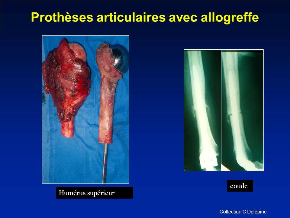 Prothèses articulaires avec allogreffe