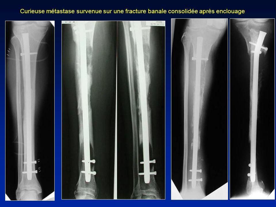Curieuse métastase survenue sur une fracture banale consolidée après enclouage