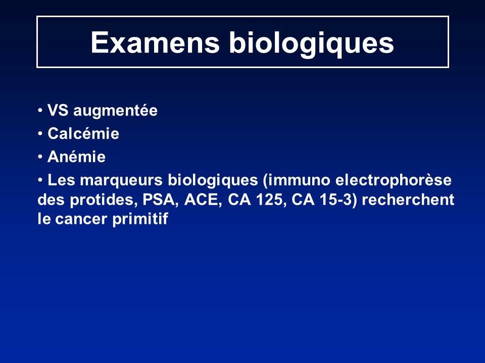 Examens biologiques VS augmentée Calcémie Anémie