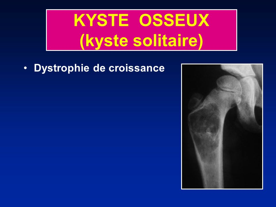 KYSTE OSSEUX (kyste solitaire)