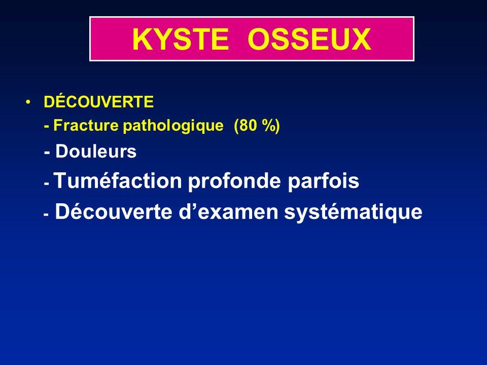 KYSTE OSSEUX - Découverte d'examen systématique DÉCOUVERTE
