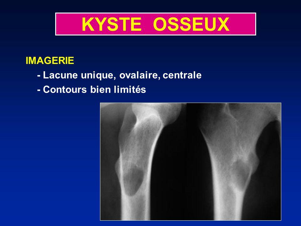 KYSTE OSSEUX IMAGERIE - Lacune unique, ovalaire, centrale