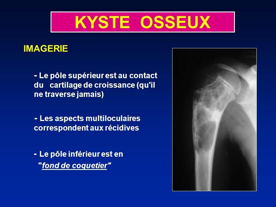 KYSTE OSSEUX IMAGERIE - Le pôle inférieur est en