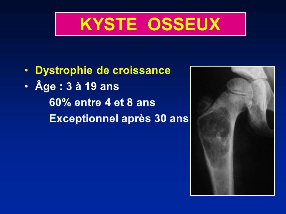KYSTE OSSEUX Dystrophie de croissance Âge : 3 à 19 ans