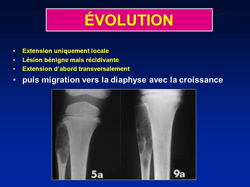 ÉVOLUTION puis migration vers la diaphyse avec la croissance
