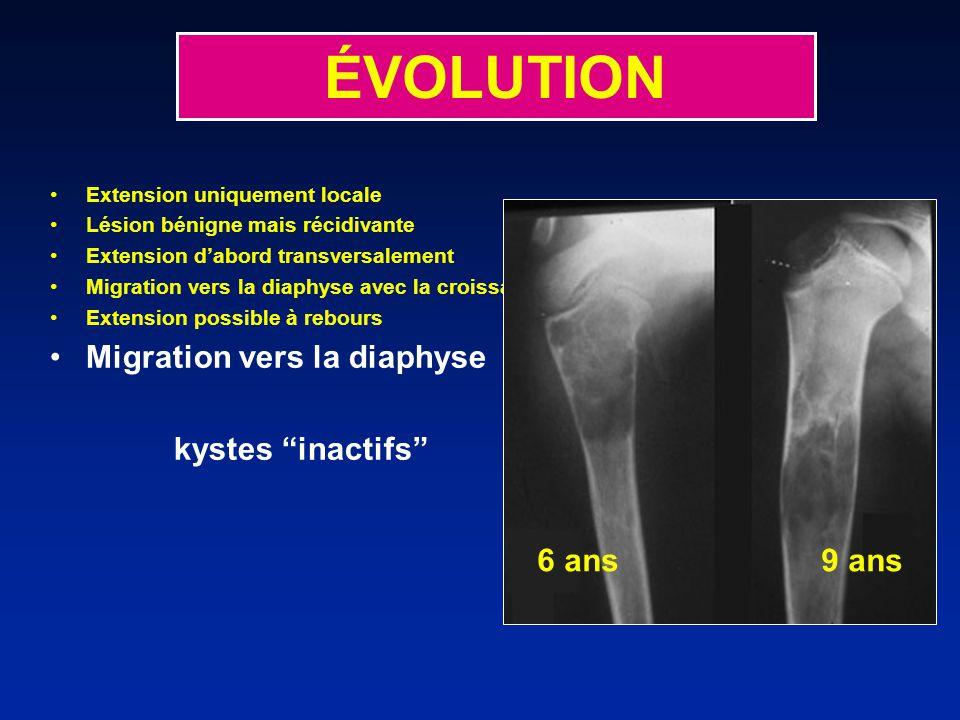 ÉVOLUTION Migration vers la diaphyse kystes inactifs 6 ans 9 ans