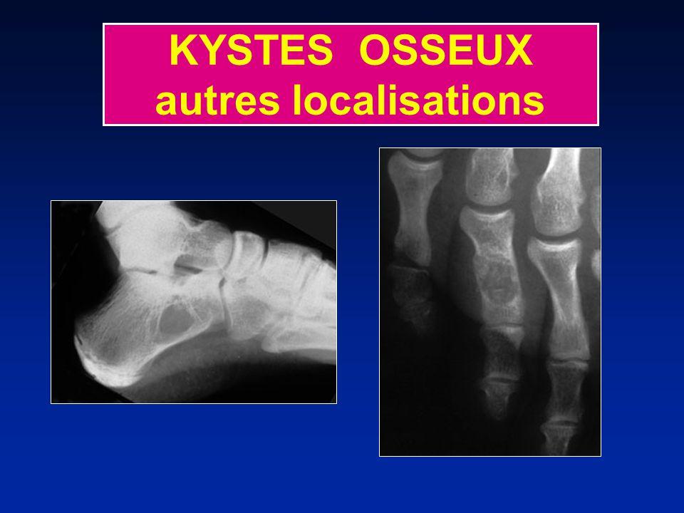 KYSTES OSSEUX autres localisations