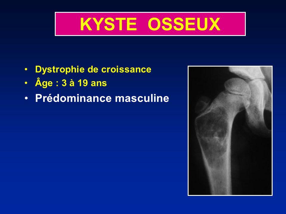 KYSTE OSSEUX Prédominance masculine Dystrophie de croissance