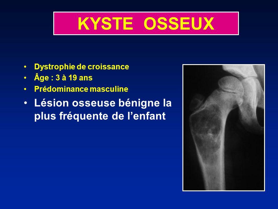 KYSTE OSSEUX Lésion osseuse bénigne la plus fréquente de l'enfant