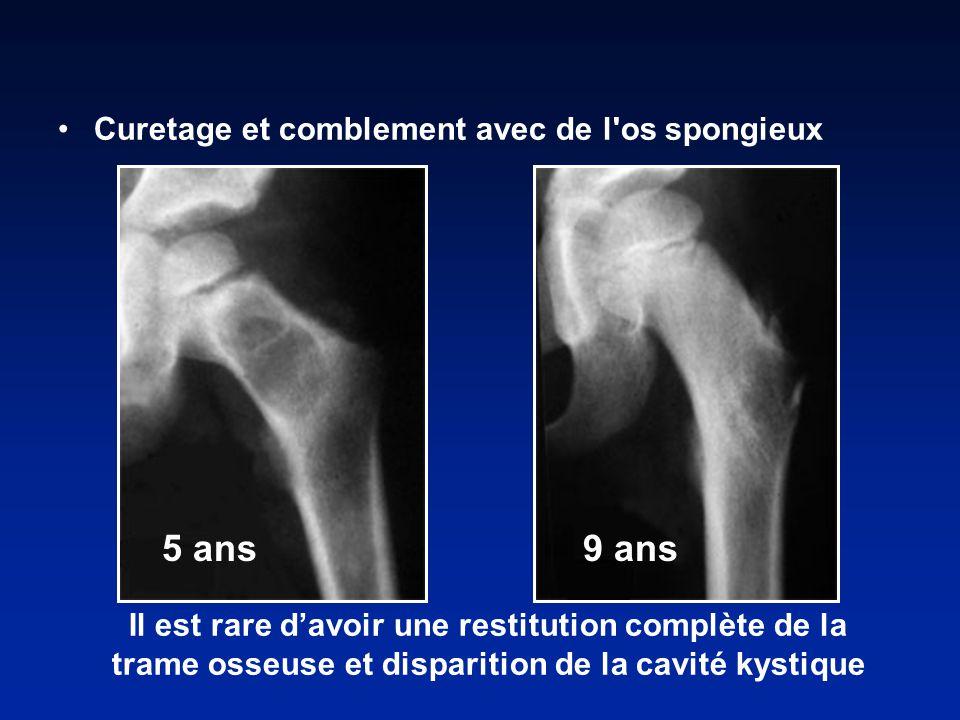 5 ans 9 ans Curetage et comblement avec de l os spongieux