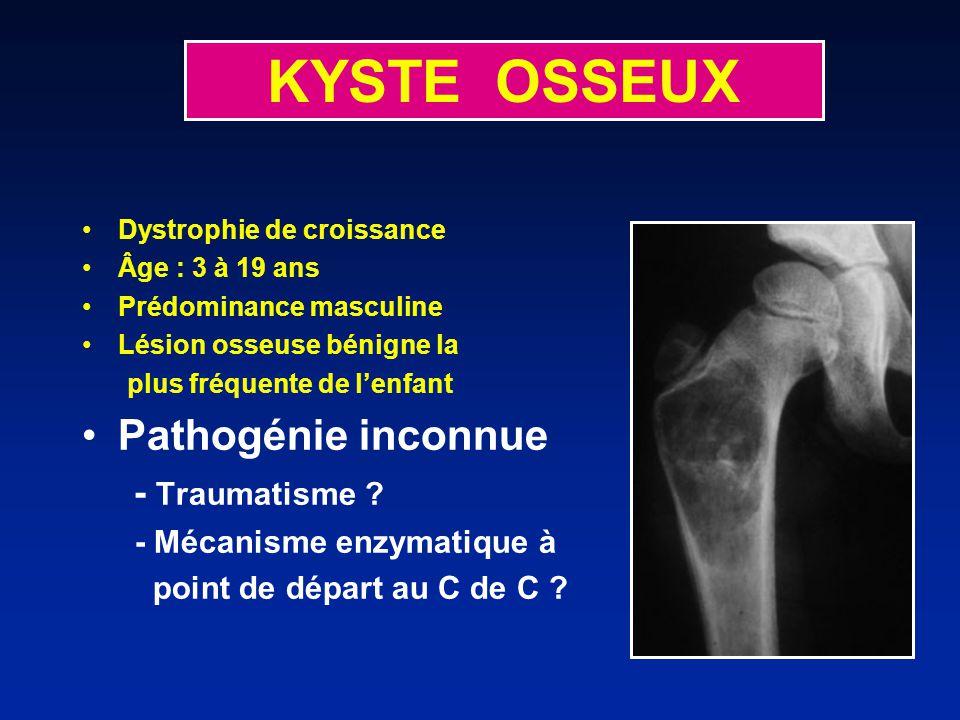 KYSTE OSSEUX Pathogénie inconnue - Traumatisme