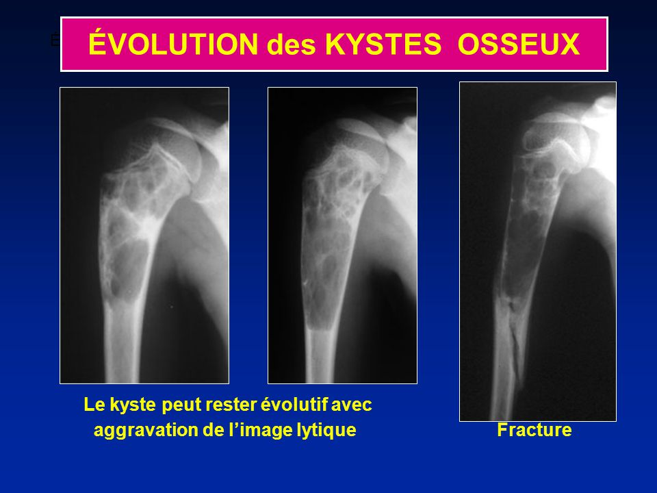 ÉVOLUTION des KYSTES OSSEUX