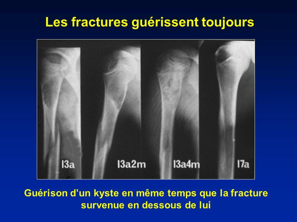 Les fractures guérissent toujours
