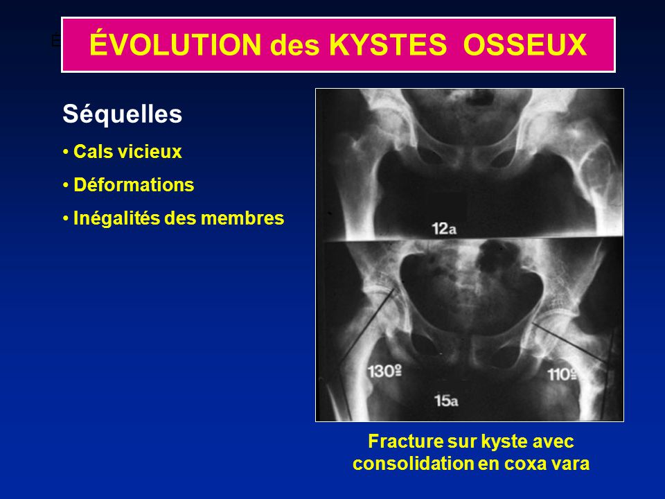 Fracture sur kyste avec consolidation en coxa vara