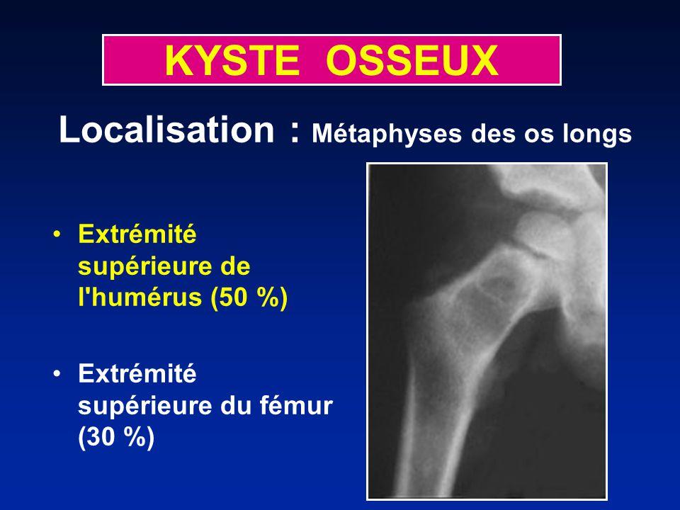 KYSTE OSSEUX Localisation : Métaphyses des os longs