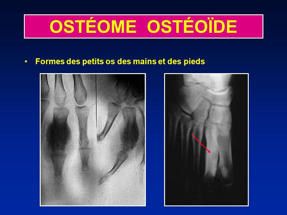 OSTÉOME OSTÉOÏDE Formes des petits os des mains et des pieds