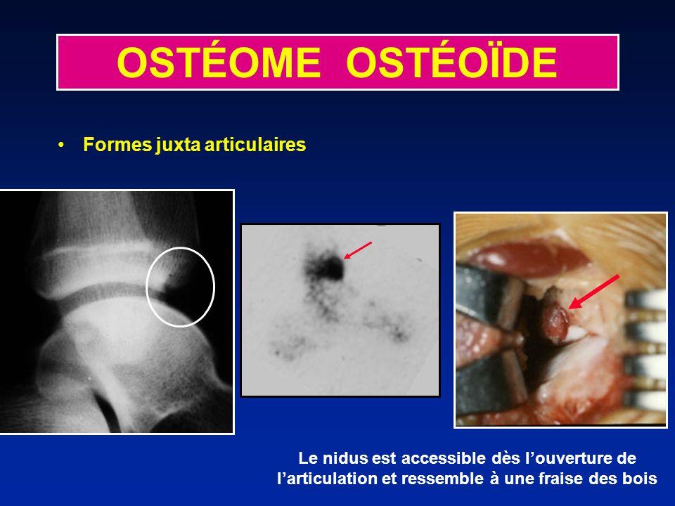 OSTÉOME OSTÉOÏDE Formes juxta articulaires