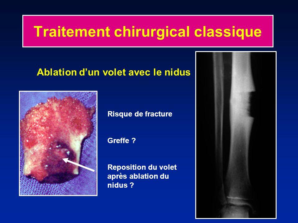 Traitement chirurgical classique