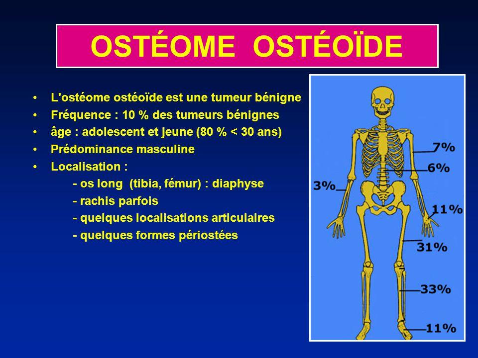 OSTÉOME OSTÉOÏDE L ostéome ostéoïde est une tumeur bénigne