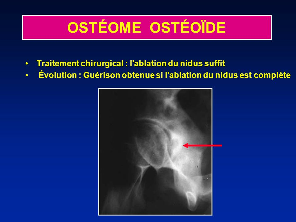OSTÉOME OSTÉOÏDE Traitement chirurgical : l ablation du nidus suffit