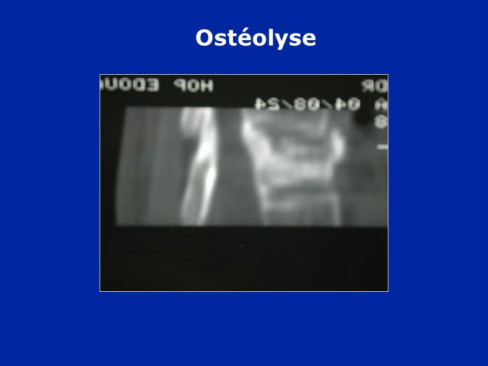 Ostéolyse