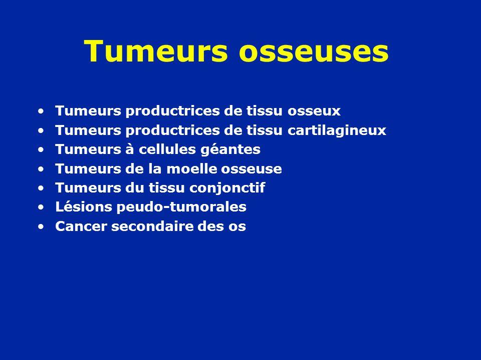 Tumeurs osseuses Tumeurs productrices de tissu osseux