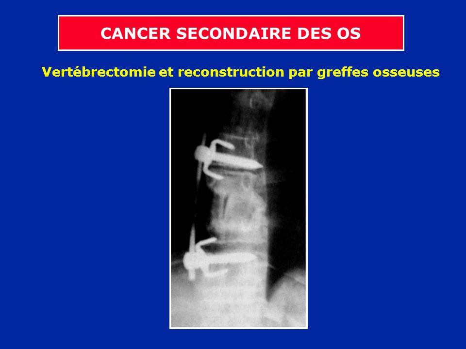 Vertébrectomie et reconstruction par greffes osseuses
