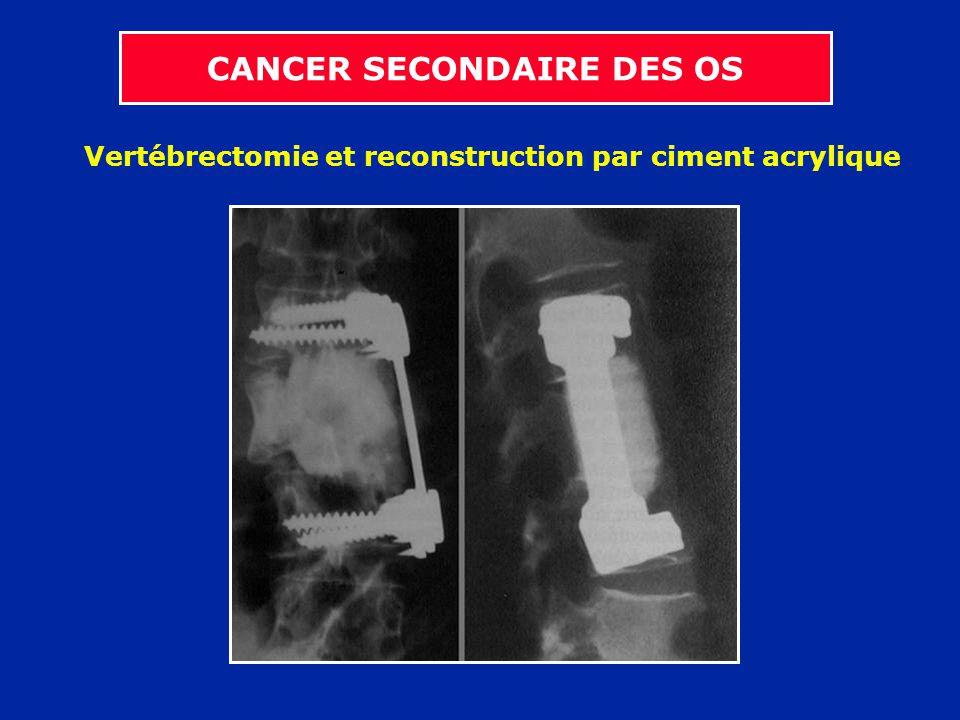 Vertébrectomie et reconstruction par ciment acrylique