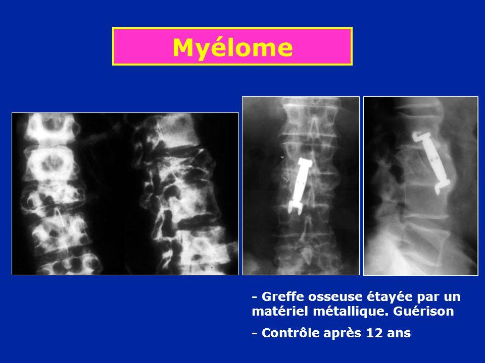 Myélome - Greffe osseuse étayée par un matériel métallique. Guérison