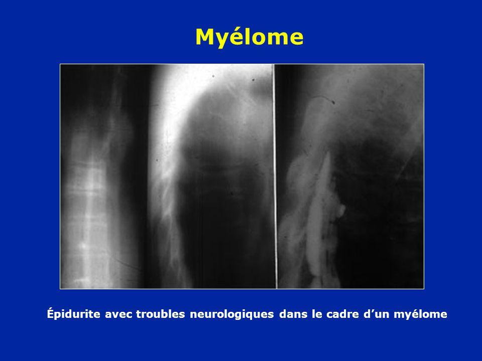 Épidurite avec troubles neurologiques dans le cadre d'un myélome