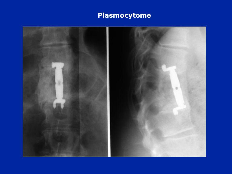 Plasmocytome